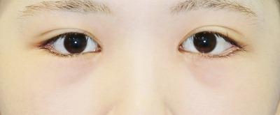 新宿ラクル美容外科クリニック 山本厚志 下眼瞼下制術(グラマラスライン形成術(皮膚切開法))+目尻切開 手術後2ヶ月目 10月21日