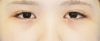 新宿ラクル美容外科クリニック 山本厚志 下眼瞼下制術(グラマラスライン形成術(皮膚切開法))+目尻切開 手術前 9月24日