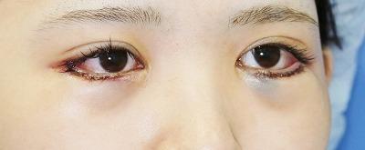 新宿ラクル美容外科クリニック 山本厚志 下眼瞼下制術(グラマラスライン形成術(皮膚切開法))+目尻切開 手術直後 9月24日