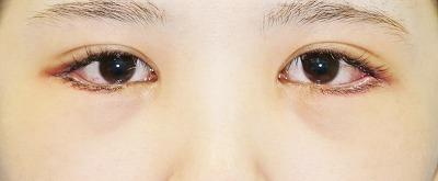新宿ラクル美容外科クリニック 山本厚志 下眼瞼下制術(グラマラスライン形成術(皮膚切開法))+目尻切開 手術後1週間目 9月24日