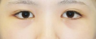 新宿ラクル美容外科クリニック 山本厚志 下眼瞼下制術(グラマラスライン形成術(皮膚切開法))+目尻切開 手術後1ヶ月目 9月24日