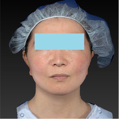 新宿ラクル美容外科クリニック 山本厚志 「ミントリフトⅡminiS flex(シークレットリフト)」 手術後3ヶ月目 11月5日