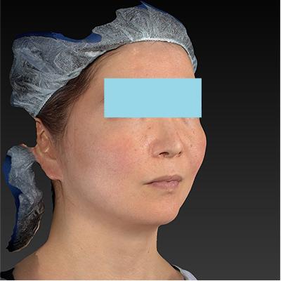 新宿ラクル美容外科クリニック 山本厚志 「ミントリフトⅡminiS flex(シークレットリフト)」 手術前 10月23日
