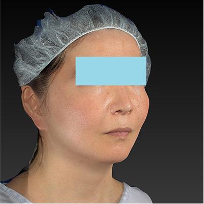 新宿ラクル美容外科クリニック 山本厚志 「ミントリフトⅡminiS flex(シークレットリフト)」 手術後2ヶ月目 10月23日