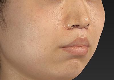 新宿ラクル美容外科クリニック 山本厚志 「人中短縮術(リップリフト)」 手術直後 10月4日