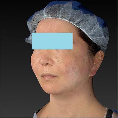 新宿ラクル美容外科クリニック 山本厚志 「ミントリフトⅡminiS flex(シークレットリフト)」 手術直後 10月23日