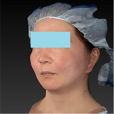 新宿ラクル美容外科クリニック 山本厚志 「ミントリフトⅡminiS flex(シークレットリフト)」 手術後1ヶ月目 10月23日