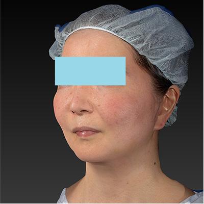 新宿ラクル美容外科クリニック 山本厚志 「ミントリフトⅡminiS flex(シークレットリフト)」 手術後1週間目 10月23日