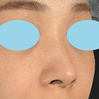 新宿ラクル美容外科クリニック 山本厚志 「Gメッシュ(G-Mesh)」「n-COG Y-ko(ワイコ)」 手術前 10月27日