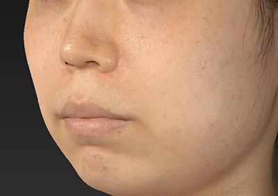 新宿ラクル美容外科クリニック 山本厚志 「人中短縮術(リップリフト)」 手術前 10月4日