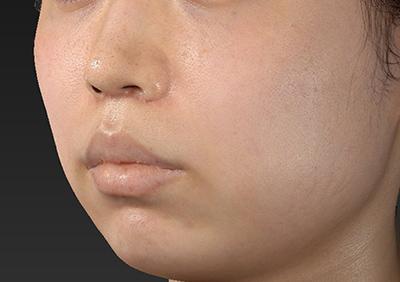 新宿ラクル美容外科クリニック 山本厚志 「人中短縮術(リップリフト)」 手術後1ヶ月目 11月1日
