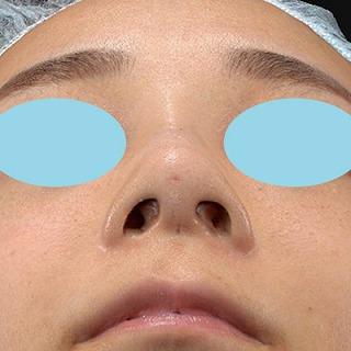 新宿ラクル美容外科クリニック 山本厚志 「Gメッシュ(G-Mesh)」「n-COG Y-ko(ワイコ)」 手術後1週間目 11月3日