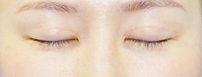 新宿ラクル美容外科クリニック 山本厚志 「全切開二重術+上まぶたの脂肪取り+眼瞼下垂(挙筋腱膜前転法)」 手術後3ヶ月目 11月9日