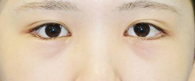 新宿ラクル美容外科クリニック 山本厚志 下眼瞼下制術(グラマラスライン形成術(皮膚切開法))+目尻切開 手術後3ヶ月目 11月10日