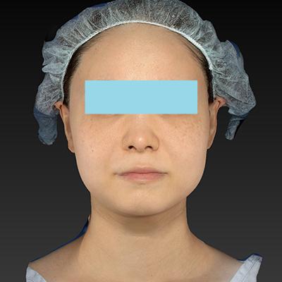 新宿ラクル美容外科クリニック 山本厚志 「ウルトラセルQプラス(顔+アゴ下)」 治療前 11月11日