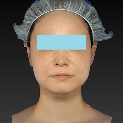 新宿ラクル美容外科クリニック 山本厚志 「ウルトラセルQプラス(顔+アゴ下)」 治療後1週間目 11月11日
