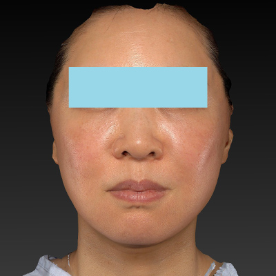 新宿ラクル美容外科クリニック 山本厚志 ナチュラルフェイスネックリフト 手術後1ヶ月目 11月27日