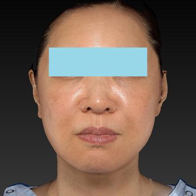 新宿ラクル美容外科クリニック 山本厚志 ナチュラルフェイスネックリフト 手術後6ヶ月目 12月2日