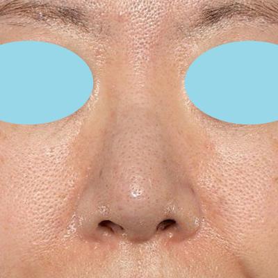 新宿ラクル美容外科クリニック 山本厚志 「オステオポア」「鼻尖縮小(close法)」 手術後1週間目 11月15日