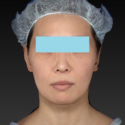 新宿ラクル美容外科クリニック 山本厚志 「サーマクールFLX 900shot」 治療後3ヶ月目 1月24日