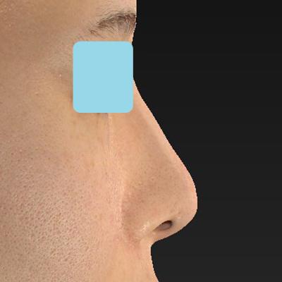 新宿ラクル美容外科クリニック 山本厚志 「オステオポア」「鼻尖縮小(close法)」 手術前 11月6日