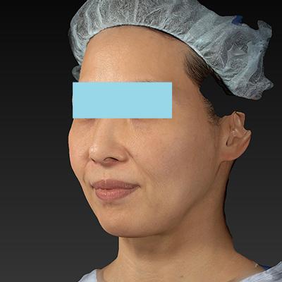 新宿ラクル美容外科クリニック 山本厚志 「サーマクールFLX 900shot」 治療前 11月1日