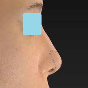 新宿ラクル美容外科クリニック 山本厚志 「オステオポア」「鼻尖縮小(close法)」 デザイン 11月6日