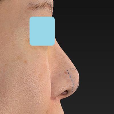 新宿ラクル美容外科クリニック 山本厚志 「オステオポア」「鼻尖縮小(close法)」 デザイン 11月15日