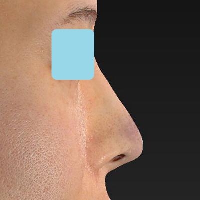 新宿ラクル美容外科クリニック 山本厚志 「オステオポア」「鼻尖縮小(close法)」 手術直後 11月6日