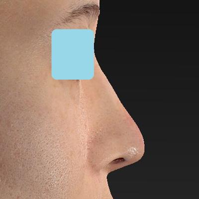 新宿ラクル美容外科クリニック 山本厚志 「オステオポア」「鼻尖縮小(close法)」 手術後1週間目 11月6日