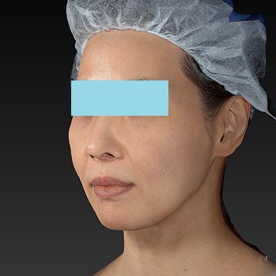 新宿ラクル美容外科クリニック 山本厚志 「サーマクールFLX 900shot」 治療後1ヶ月目 11月1日