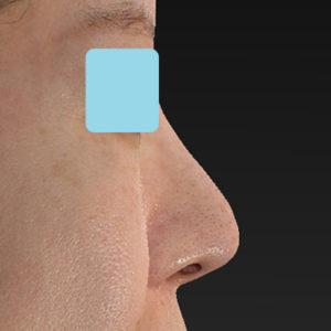 新宿ラクル美容外科クリニック 山本厚志 「オステオポア」「鼻尖縮小(close法)」 手術後1ヶ月目 12月7日