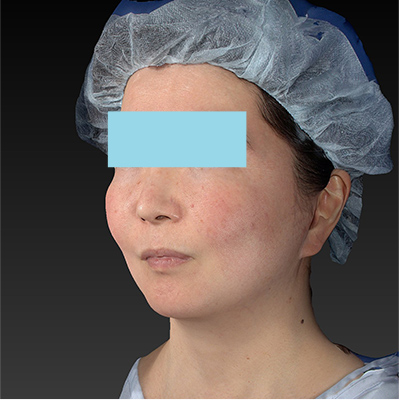 新宿ラクル美容外科クリニック 山本厚志 「ミントリフトⅡminiS flex(シークレットリフト)」 手術後6ヶ月目 1月26日