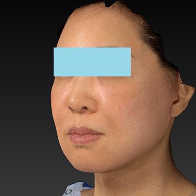 新宿ラクル美容外科クリニック 山本厚志 ナチュラルフェイスネックリフト 手術後3ヶ月目 11月27日