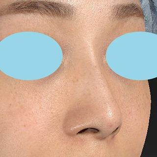 新宿ラクル美容外科クリニック 山本厚志 「Gメッシュ(G-Mesh)」「n-COG Y-ko(ワイコ)」 手術後1ヶ月目 11月30日