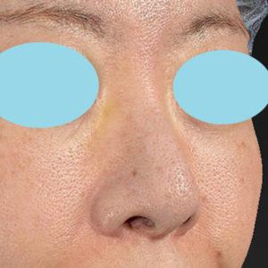 新宿ラクル美容外科クリニック 山本厚志 「オステオポア」「鼻尖縮小(close法)」 手術前 11月15日