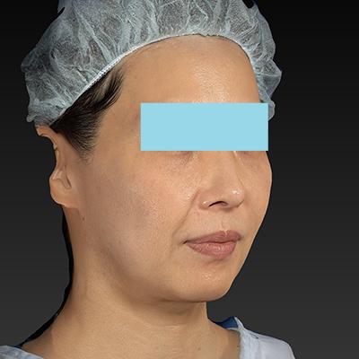 新宿ラクル美容外科クリニック 山本厚志 「サーマクールFLX 900shot」 治療直後 11月1日