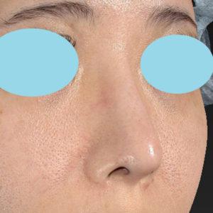 新宿ラクル美容外科クリニック 山本厚志 「オステオポア」「鼻尖縮小(close法)」 手術後1ヶ月目 12月5日
