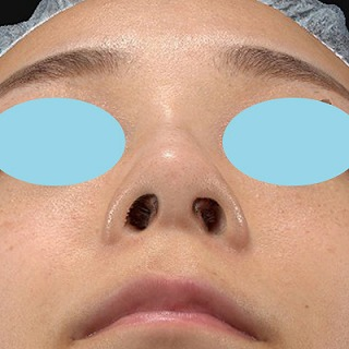 新宿ラクル美容外科クリニック 山本厚志 「Gメッシュ(G-Mesh)」「n-COG Y-ko(ワイコ)」 手術後2ヶ月目 12月19日