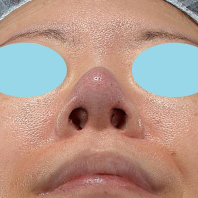 新宿ラクル美容外科クリニック 山本厚志 「オステオポア」「鼻尖縮小(close法)」 手術直後 11月15日
