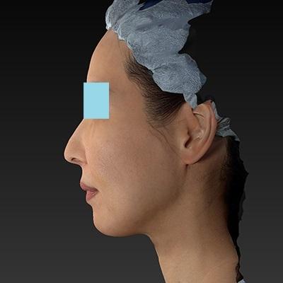 新宿ラクル美容外科クリニック 山本厚志 「サーマクールFLX 900shot」 治療後1週間目 11月1日