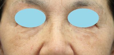 新宿ラクル美容外科クリニック 山本厚志 「サーマクールFLXアイ」「ベビーコラーゲン」 治療後1ヶ月目 11月12日