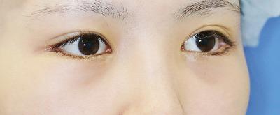 新宿ラクル美容外科クリニック 山本厚志 下眼瞼下制術(グラマラスライン形成術(皮膚切開法))+目尻切開 手術後6ヶ月目 2月2日