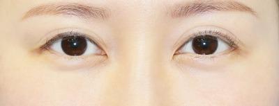 新宿ラクル美容外科クリニック 山本厚志 「全切開二重術+上まぶたの脂肪取り+眼瞼下垂(挙筋腱膜前転法)」 手術後6ヶ月目 2月23日