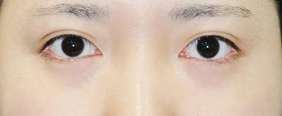 新宿ラクル美容外科クリニック 山本厚志 「目頭切開+目尻切開」 手術後12ケ月目 3月31日