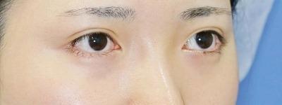 新宿ラクル美容外科クリニック 山本厚志 「目頭切開+目尻切開」 手術後6ケ月目 11月27日