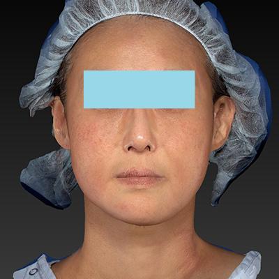 新宿ラクル美容外科クリニック 山本厚志 「テスリフト ソフト(TESSLIFT SOFT)」 手術後2ヶ月目 1月22日