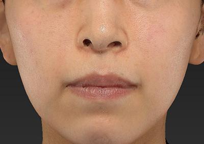 新宿ラクル美容外科クリニック 山本厚志 「人中短縮術(リップリフト)」 手術前 12月18日