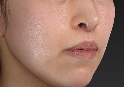 新宿ラクル美容外科クリニック 山本厚志 「人中短縮術(リップリフト)」 手術後2ヶ月目 12月18日