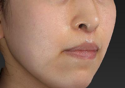新宿ラクル美容外科クリニック 山本厚志 「人中短縮術(リップリフト)」 手術後3ヶ月目 1月20日